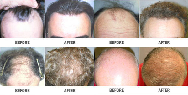 http://www.veinmedsolutions.com/wp-content/uploads/2017/11/hair-restoration-vein-med-solutions-1-600x304.jpg