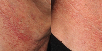 http://www.veinmedsolutions.com/wp-content/uploads/2017/11/vein_med_solutions_Brown_Spots_and_Dark_Pigmentations-400x200.png
