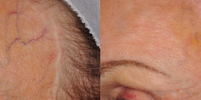 http://www.veinmedsolutions.com/wp-content/uploads/2017/11/vein_med_solutions_facial_veins_removal-400x200.png