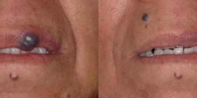 http://www.veinmedsolutions.com/wp-content/uploads/2017/11/vein_med_solutions_facial_venous_lake_moles-400x200.png
